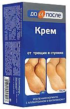 Profumi e cosmetici Crema per piedi screpolati - Do i Posle