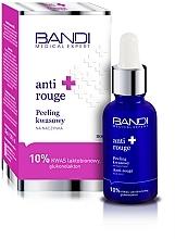 Profumi e cosmetici Peeling con acido anticuperosio - Bandi Medical Expert Anti Rouge Acid Peel